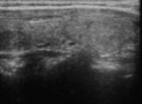 disfunzione erettile del supplemento su iodio