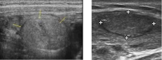 un nodulo di 4 mm ipoecogeno tiroide può essere cancro